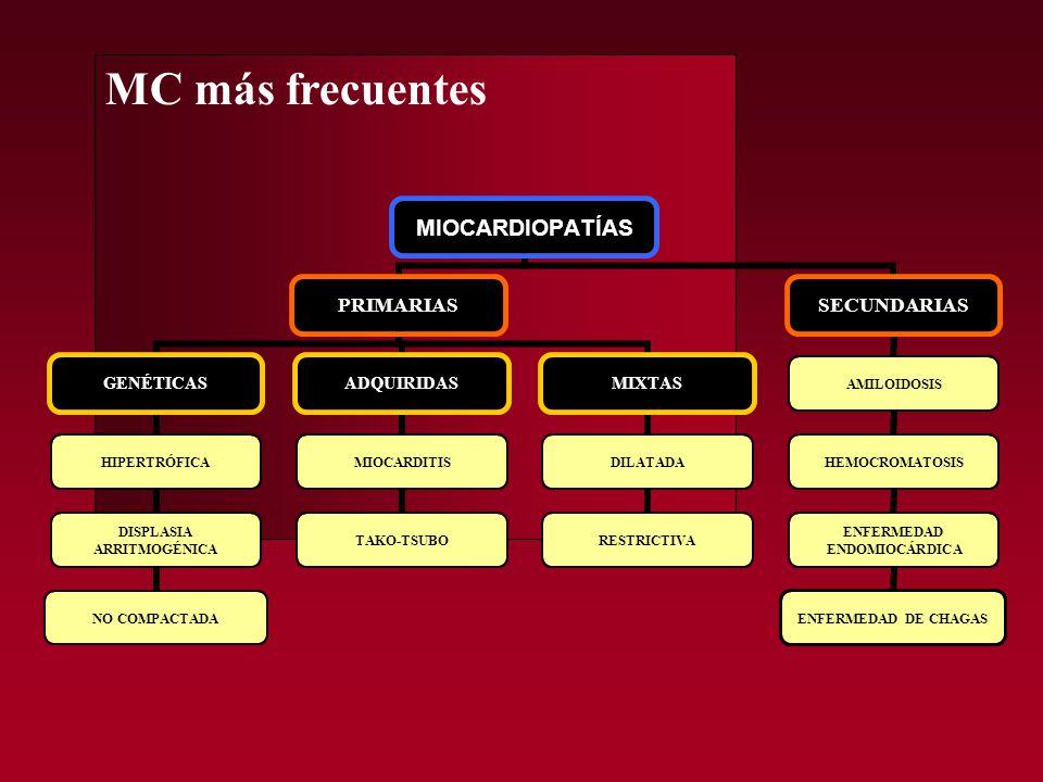 MC NO COMPACTADA Secuencia cine-RM, 2 cámaras y eje corto.