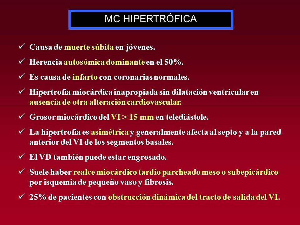 Secuencia cine-RM, 3 cámaras y eje corto. Hipertrofia septal asimétrica del VI (flechas).