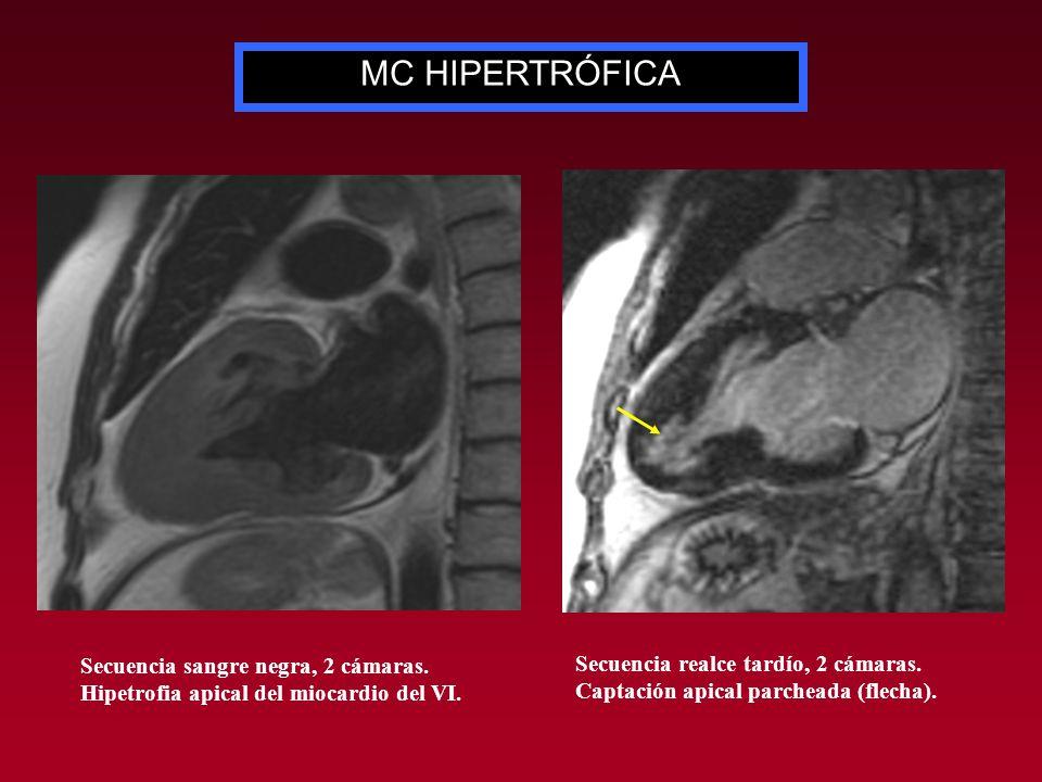MC HIPERTRÓFICA Secuencias de realce tardío, 2 cámaras (arriba) y eje corto (abajo).