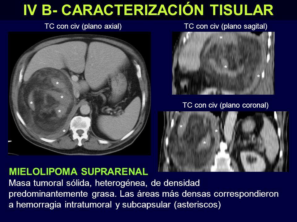 IV B- CARACTERIZACIÓN TISULAR MIELOLIPOMA SUPRARENAL Masa tumoral sólida, heterogénea, de densidad predominantemente grasa.