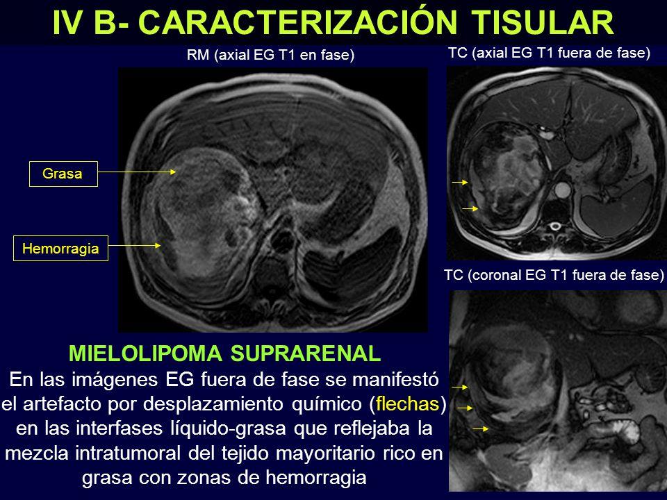 IV B- CARACTERIZACIÓN TISULAR MIELOLIPOMA SUPRARENAL En las imágenes EG fuera de fase se manifestó el artefacto por desplazamiento químico (flechas) en las interfases líquido-grasa que reflejaba la mezcla intratumoral del tejido mayoritario rico en grasa con zonas de hemorragia RM (axial EG T1 en fase) TC (axial EG T1 fuera de fase) TC (coronal EG T1 fuera de fase) GrasaHemorragia