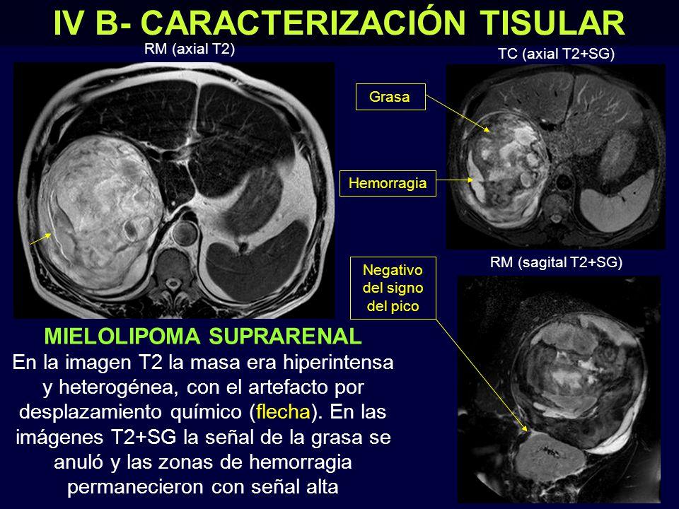 IV B- CARACTERIZACIÓN TISULAR MIELOLIPOMA SUPRARENAL En la RM se confirmó la presencia mayoritaria de grasa.