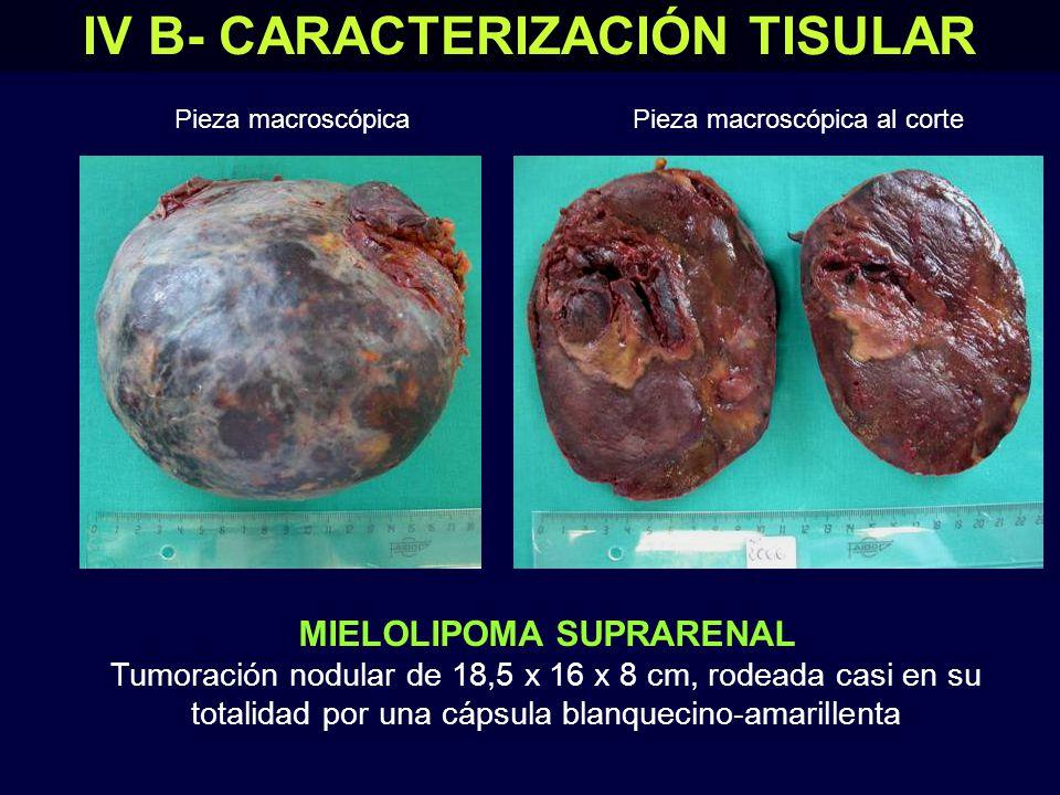 IV B- CARACTERIZACIÓN TISULAR MIELOLIPOMA SUPRARENAL (fotos de la microscopía) Tumor compuesto por elementos típicos de la médula ósea y grasa madura HE x 10 HE x 20 Adipocito HE x 10 Megacariocito Nidos eritroides Corteza (zona glomerular) Cápsula