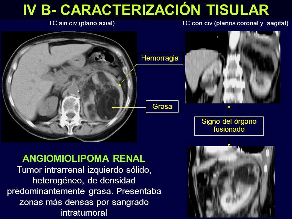 IV B- CARACTERIZACIÓN TISULAR ANGIOMIOLIPOMA RENAL Tumor intrarrenal izquierdo sólido, heterogéneo, de densidad predominantemente grasa.