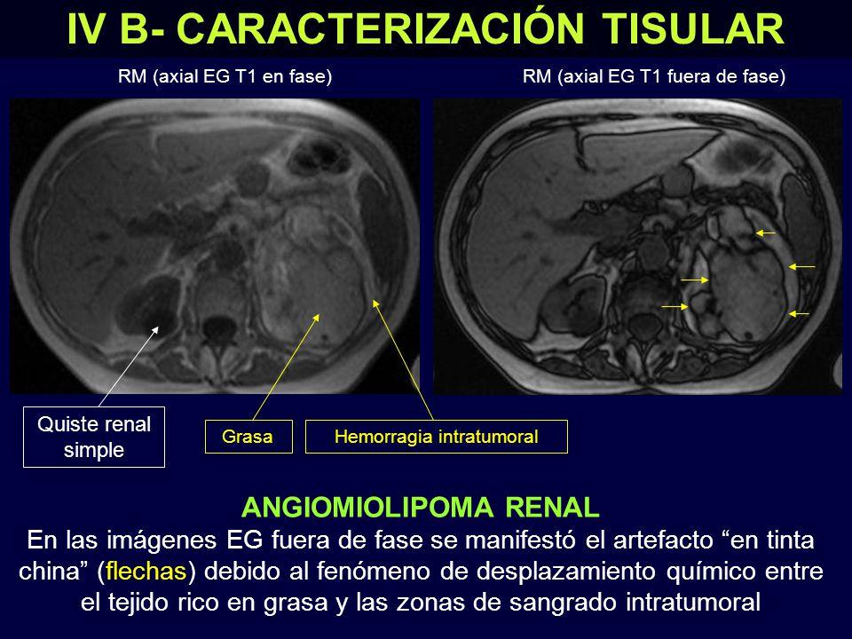 IV B- CARACTERIZACIÓN TISULAR ANGIOMIOLIPOMA RENAL En las imágenes EG fuera de fase se manifestó el artefacto en tinta china (flechas) debido al fenómeno de desplazamiento químico entre el tejido rico en grasa y las zonas de sangrado intratumoral RM (axial EG T1 en fase)RM (axial EG T1 fuera de fase) GrasaHemorragia intratumoral Quiste renal simple