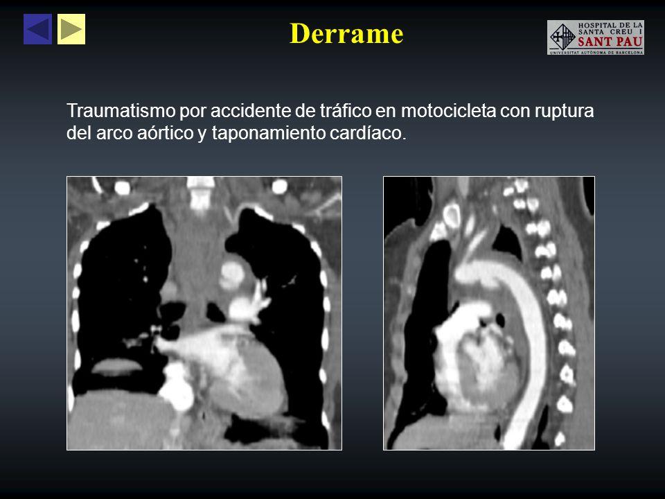 Derrame Hemopericardio secundario a ruptura distal en cirugía de by-pass coronario.