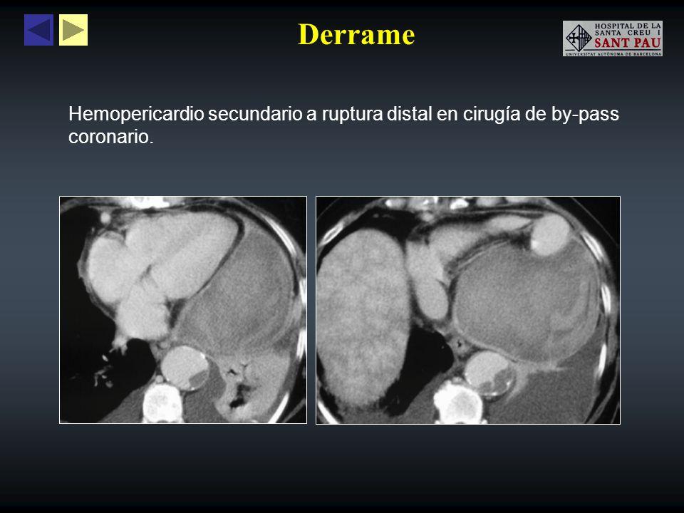 Derrame Infarto miocárdico con ruptura aguda de la pared del ventrículo derecho con extravasación del contraste dentro de la cavidad pericárdica (flecha).