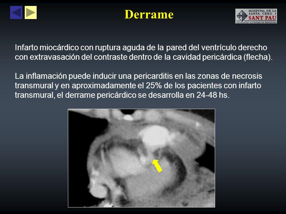Derrame Infarto miocárdico con ruptura aguda de la pared del ventrículo derecho con extravasación del contraste dentro de la cavidad pericárdica (flec