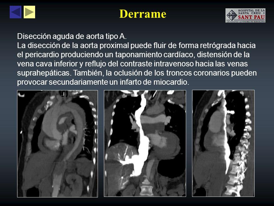 Derrame Disección aguda de aorta tipo A. La disección de la aorta proximal puede fluir de forma retrógrada hacia el pericardio produciendo un taponami