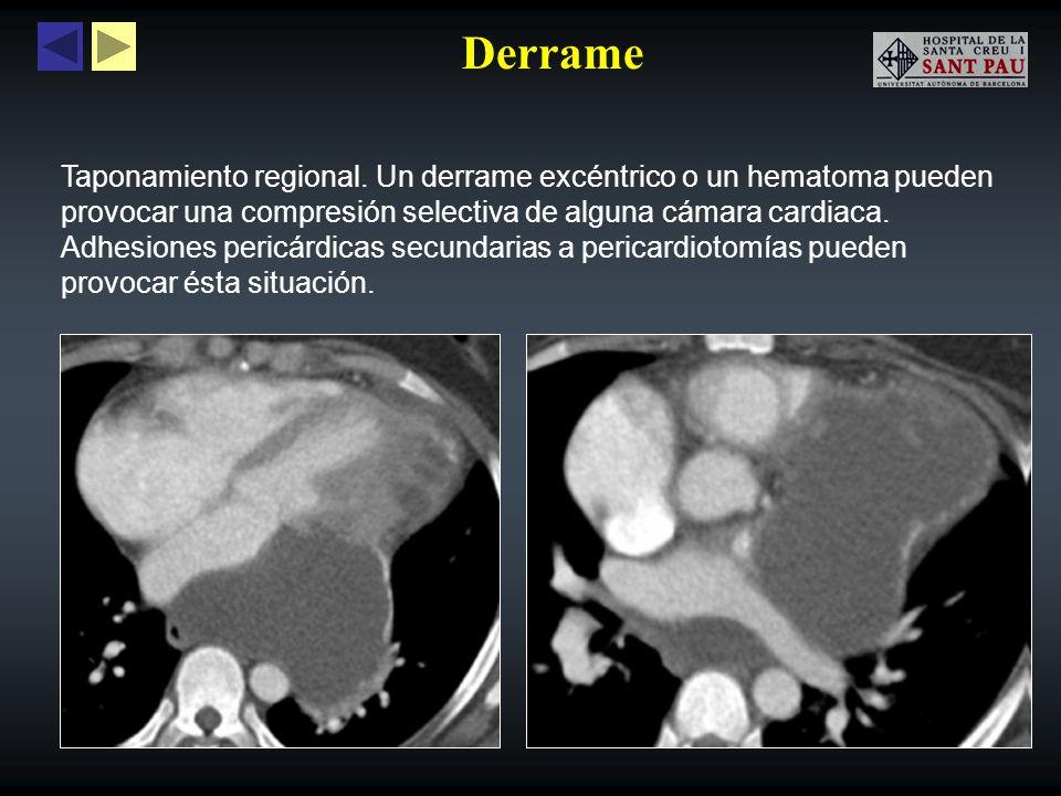 Derrame Taponamiento regional. Un derrame excéntrico o un hematoma pueden provocar una compresión selectiva de alguna cámara cardiaca. Adhesiones peri