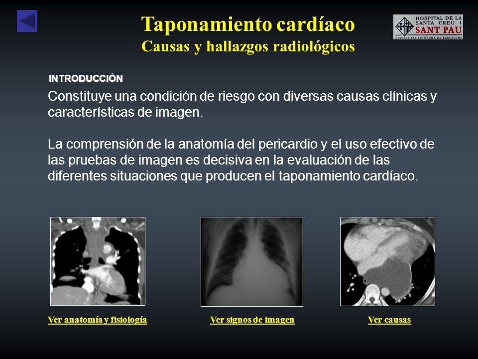 Anatomía y fisiología PERICARDIO PARIETAL Capa externa fibrosa, que se inserta en el diafragma y esternón.