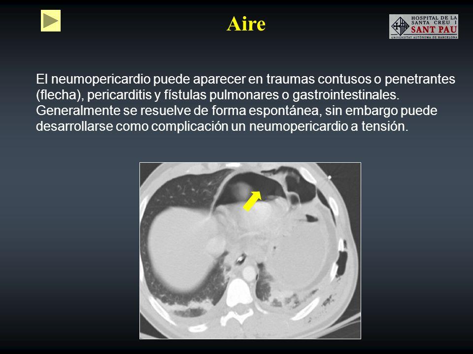 Aire El neumopericardio puede aparecer en traumas contusos o penetrantes (flecha), pericarditis y fístulas pulmonares o gastrointestinales. Generalmen