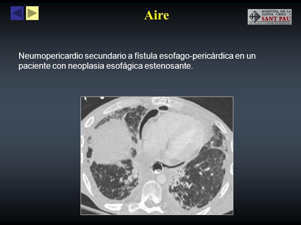 Aire Enfermedades pulmonares como el neumotórax a tensión o grandes lesiones quísticas, pueden producir taponamiento cardiaco con compromiso hemodinámico.