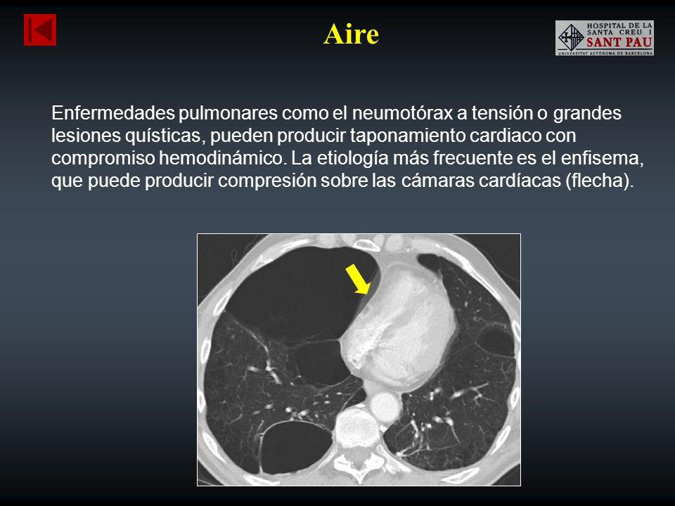 Aire Enfermedades pulmonares como el neumotórax a tensión o grandes lesiones quísticas, pueden producir taponamiento cardiaco con compromiso hemodinám