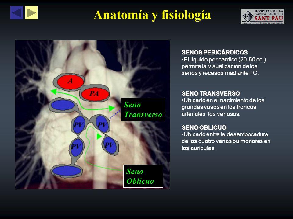 Anatomía y fisiología SENOS PERICÁRDICOS El líquido pericárdico (20-50 cc.) permite la visualización de los senos y recesos mediante TC. SENO TRANSVER