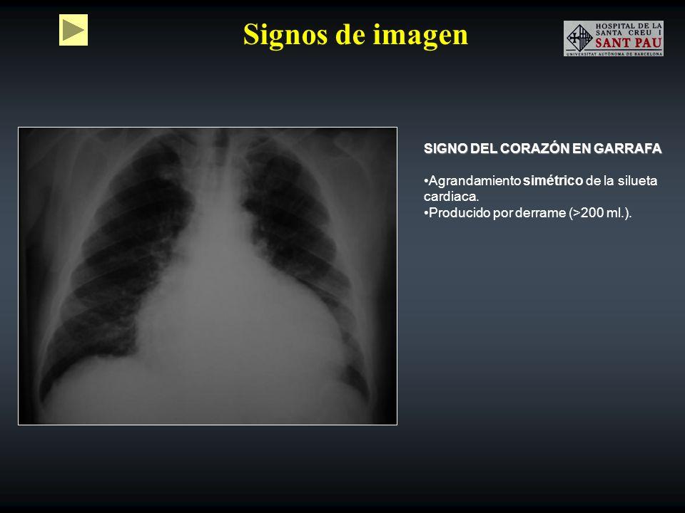 Signos de imagen SIGNO DEL CORAZÓN EN GARRAFA Agrandamiento simétrico de la silueta cardiaca. Producido por derrame (>200 ml.).