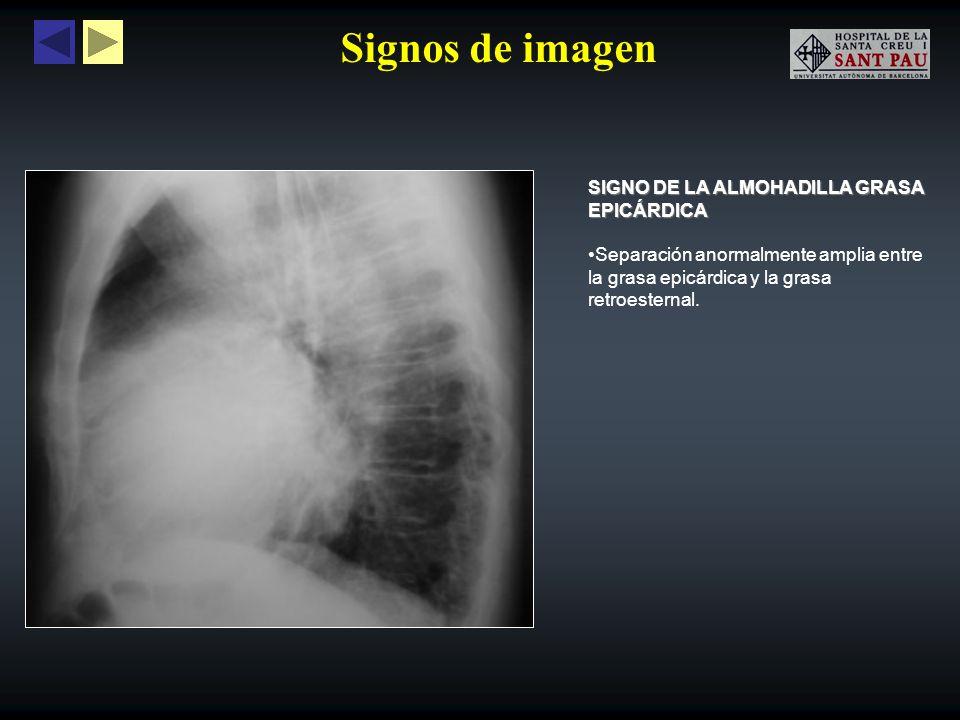 Signos de imagen SIGNO DEL CORAZÓN PEQUEÑO Puede observarse en pacientes postraumáticos con neumopericárdio a tensión, debido a una disminución súbita e importante del tamaño de la silueta cardíaca.
