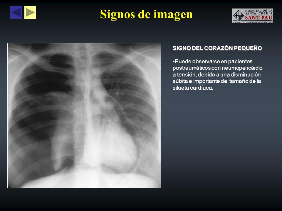 Signos de imagen SIGNO DEL CORAZÓN PEQUEÑO Puede observarse en pacientes postraumáticos con neumopericárdio a tensión, debido a una disminución súbita
