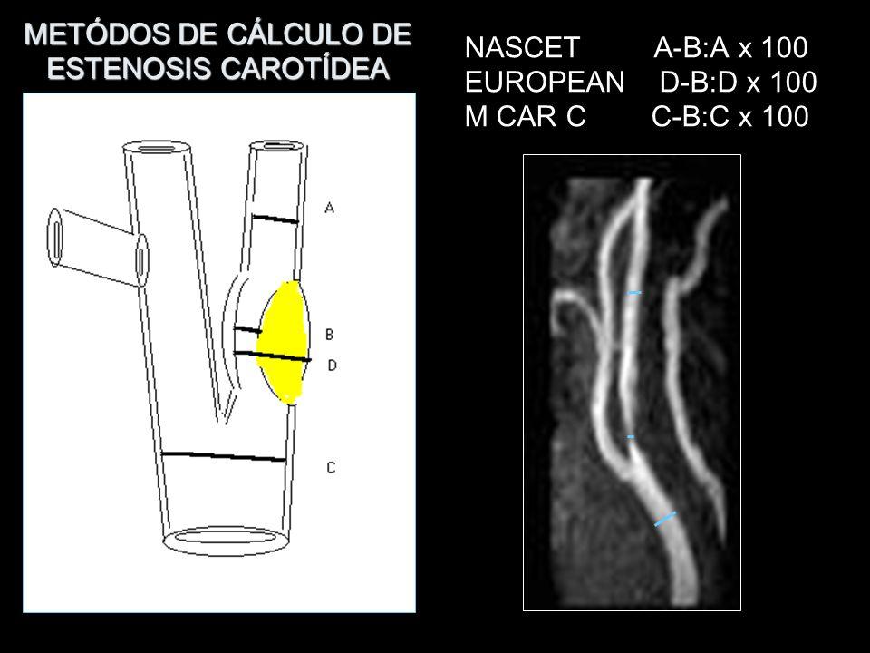 Placa ulcerada. Métodos de reconstrucción permiten confirmar la ulceración. MOTS A ARM + C