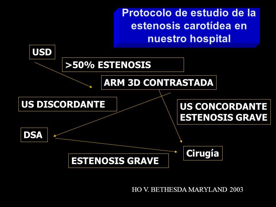 Angiografía SD (ASD) cara ASD ingreso hospitalario Riesgo: 0.1-0.6 % ictus y < 0.1% muerte ASD raramente altera el plan quirúrgico Es suficiente la combinación Eco-Doppler y RM-ARM para planificar la terapeutica Endoarteriectomía sin ASD