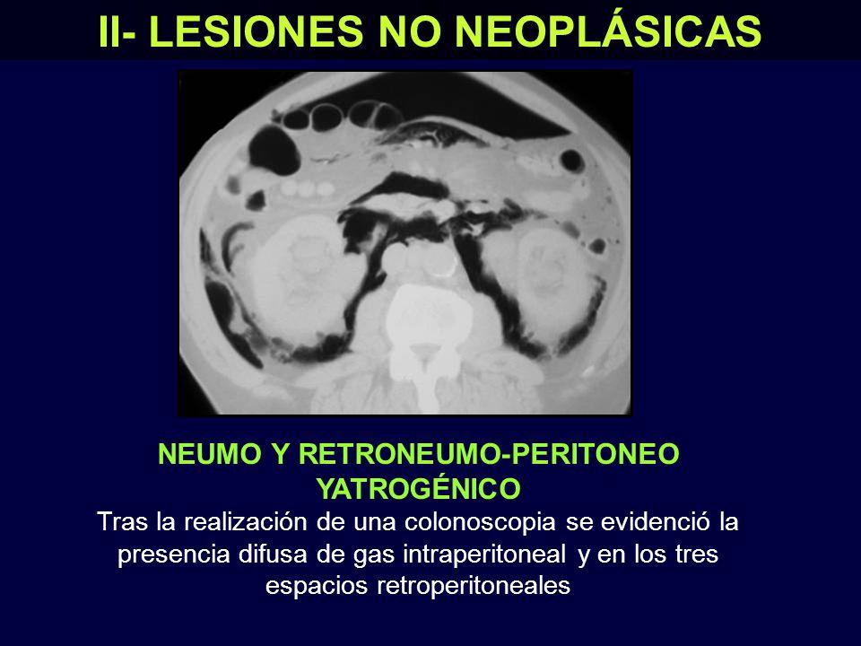 II- LESIONES NO NEOPLÁSICAS NEUMO Y RETRONEUMO-PERITONEO YATROGÉNICO Tras la realización de una colonoscopia se evidenció la presencia difusa de gas intraperitoneal y en los tres espacios retroperitoneales