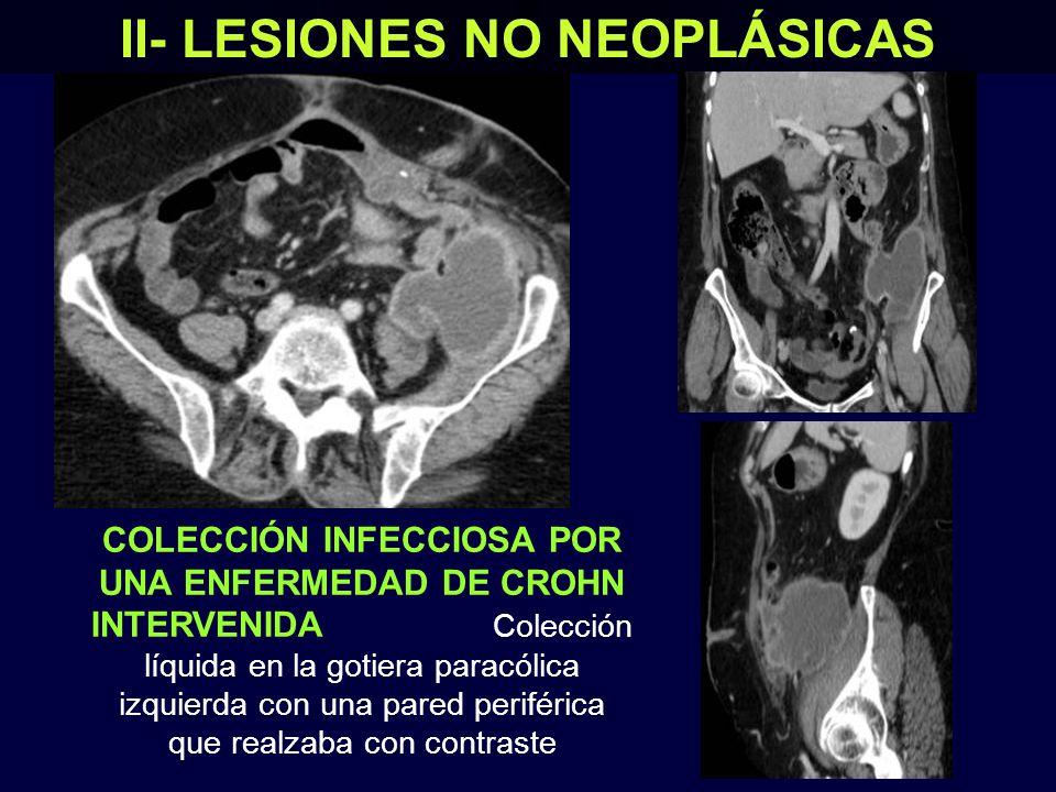 II- LESIONES NO NEOPLÁSICAS HEMATOMA RETROPERITONEAL EN PACIENTE ANTICOAGULADO Gran colección que se extendía desde el espacio pararrenal posterior derecho hasta la fosa ilíaca (asteriscos) * * * * * * * TC sagital con civ TC coronal con civ TC axial con civ TC axial sin civ En las imágenes sin contraste se identificaron áreas más densas dentro del hematoma, que correspondían a zonas de sangrado reciente