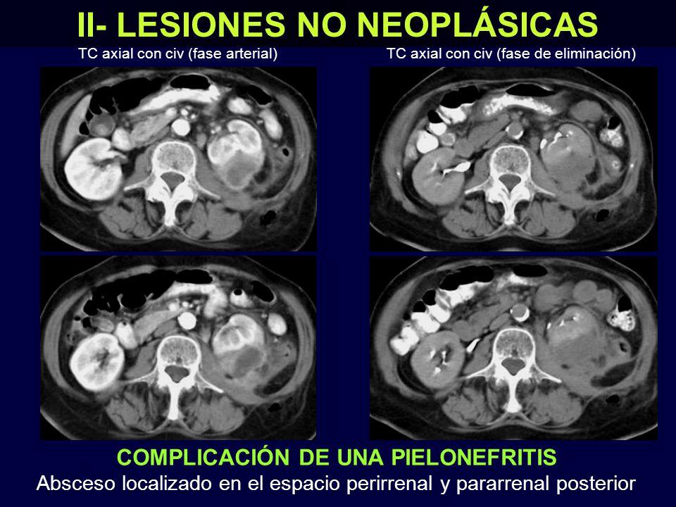 II- LESIONES NO NEOPLÁSICAS TC axial con civ (fase arterial) COMPLICACIÓN DE UNA PIELONEFRITIS Absceso localizado en el espacio perirrenal y pararrenal posterior TC axial con civ (fase de eliminación)
