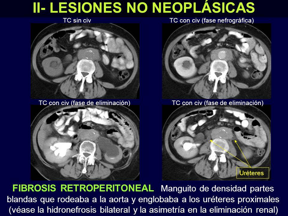 II- LESIONES NO NEOPLÁSICAS FIBROSIS RETROPERITONEAL Manguito de densidad partes blandas que rodeaba a la aorta y englobaba a los uréteres proximales (véase la hidronefrosis bilateral y la asimetría en la eliminación renal) TC sin civ TC con civ (fase de eliminación) Uréteres TC con civ (fase nefrográfica)
