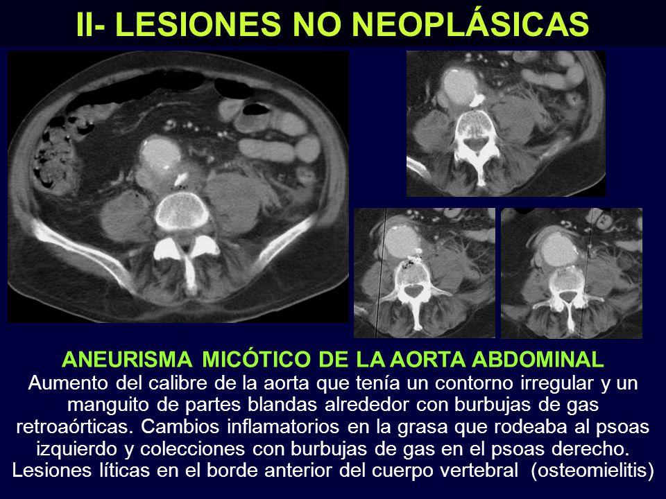 DISECCIÓN DE LA AORTA ABDOMINAL Imagen de doble luz aórtica en una paciente que presentaba dolor abdominal, que correspondió a una disección de tipo B de Stanford II- LESIONES NO NEOPLÁSICAS Imágenes coronales de la TC Flap intimal Las arterias mesentéricas y renales estaban permeables y los riñones presentaban una adecuada captación del contraste Imágenes axiales de la TC