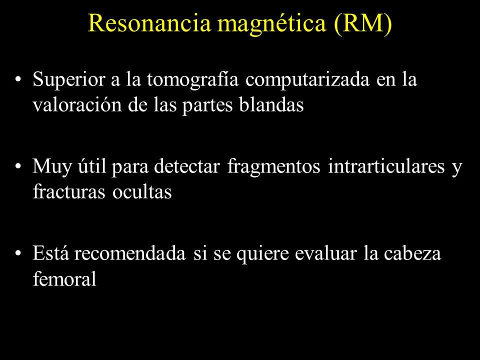 Resonancia magnética (RM) Superior a la tomografía computarizada en la valoración de las partes blandas Muy útil para detectar fragmentos intrarticula