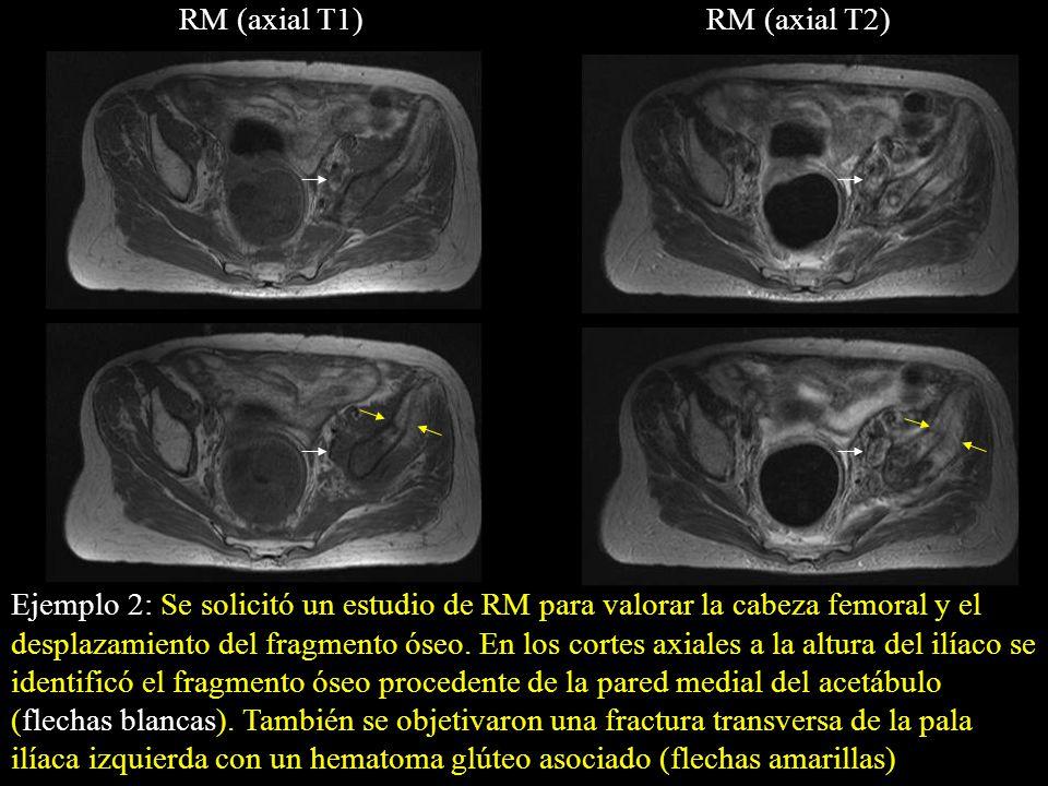 Ejemplo 2: Se solicitó un estudio de RM para valorar la cabeza femoral y el desplazamiento del fragmento óseo. En los cortes axiales a la altura del i