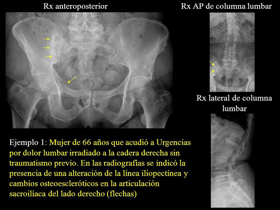 Rx AP de columna lumbar Ejemplo 1: Mujer de 66 años que acudió a Urgencias por dolor lumbar irradiado a la cadera derecha sin traumatismo previo. En l