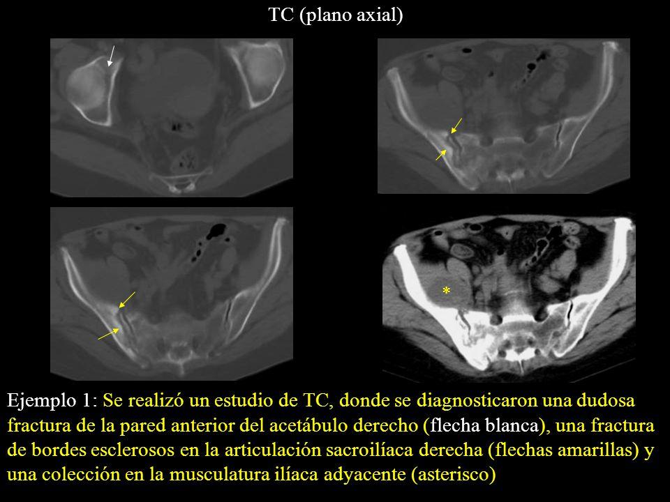 Ejemplo 1: Se realizó un estudio de TC, donde se diagnosticaron una dudosa fractura de la pared anterior del acetábulo derecho (flecha blanca), una fr