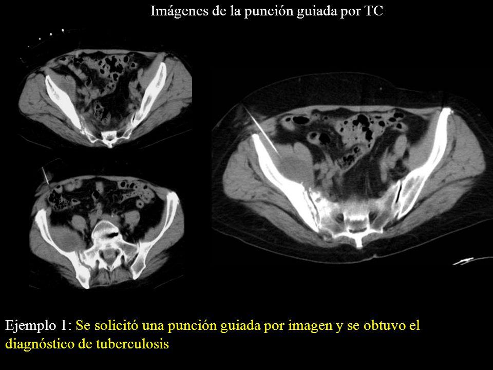 Imágenes de la punción guiada por TC Ejemplo 1: Se solicitó una punción guiada por imagen y se obtuvo el diagnóstico de tuberculosis *
