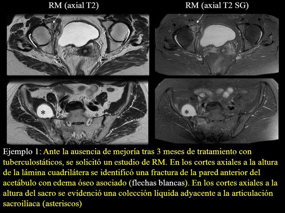 Ejemplo 1: Ante la ausencia de mejoría tras 3 meses de tratamiento con tuberculostáticos, se solicitó un estudio de RM. En los cortes axiales a la alt