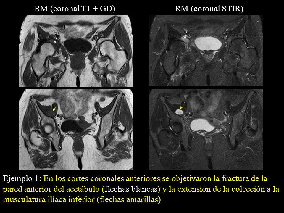 Ejemplo 1: En los cortes coronales anteriores se objetivaron la fractura de la pared anterior del acetábulo (flechas blancas) y la extensión de la col