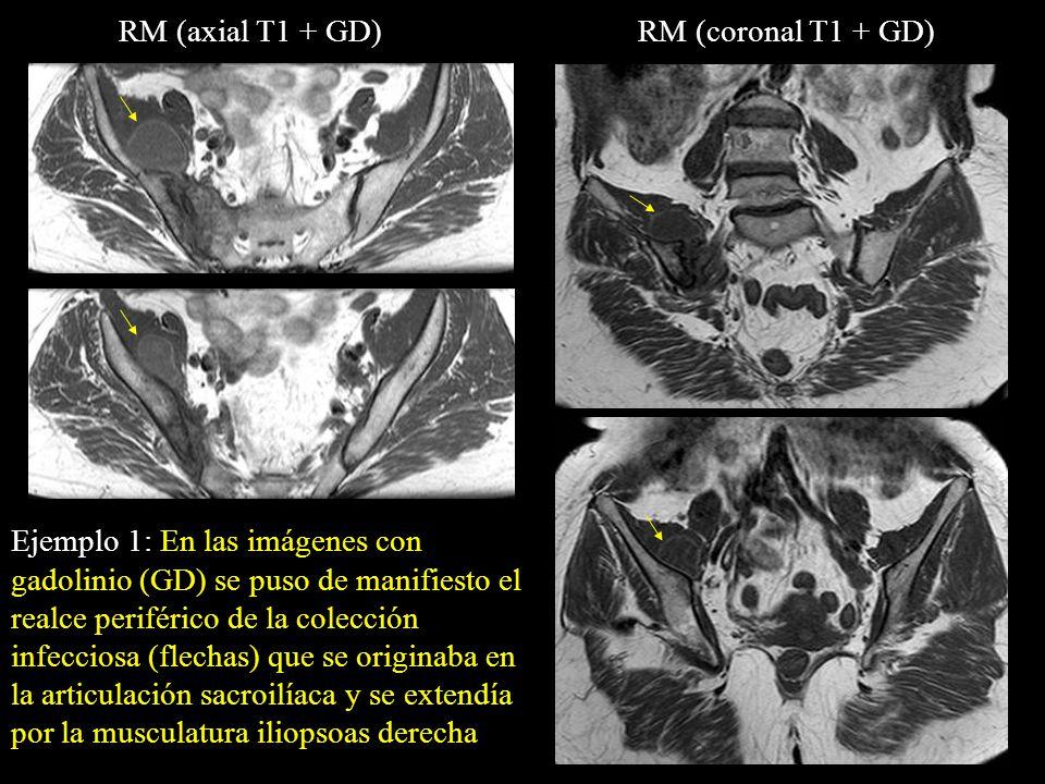 Ejemplo 1: En las imágenes con gadolinio (GD) se puso de manifiesto el realce periférico de la colección infecciosa (flechas) que se originaba en la a