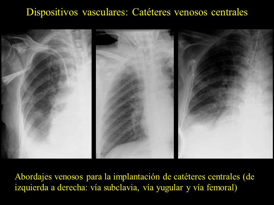 Dispositivos vasculares: Catéteres venosos centrales Abordajes venosos para la implantación de catéteres centrales (de izquierda a derecha: vía subcla