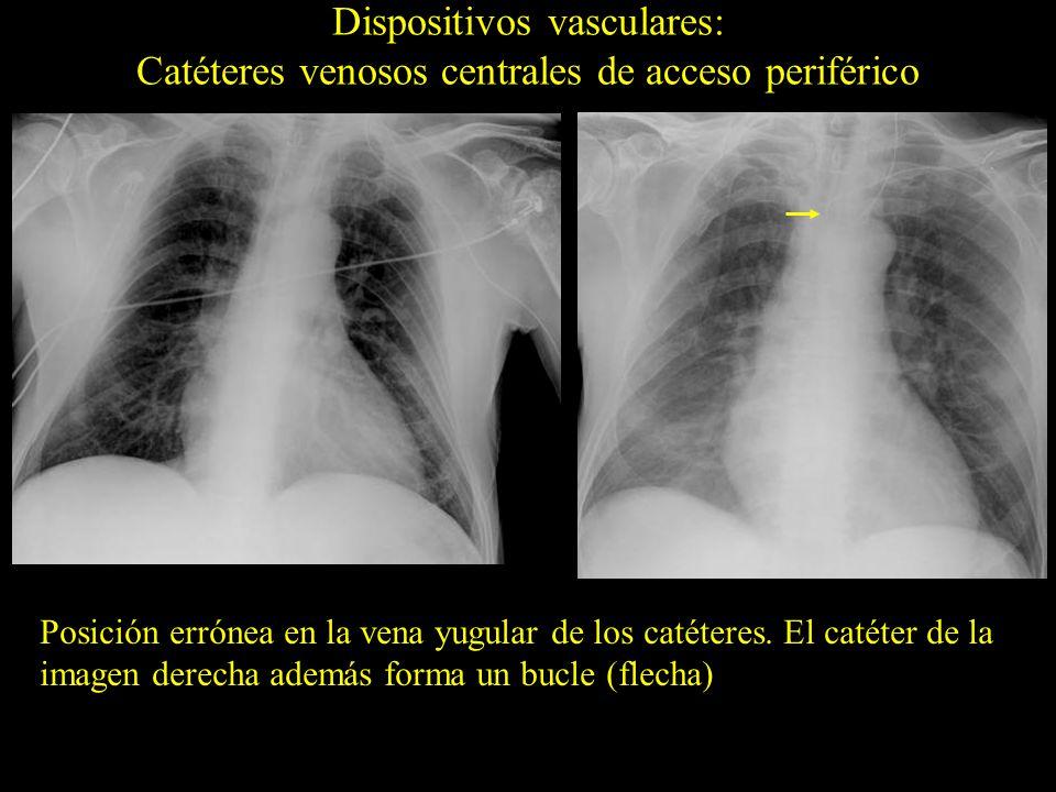 Posición errónea en la vena yugular de los catéteres. El catéter de la imagen derecha además forma un bucle (flecha)
