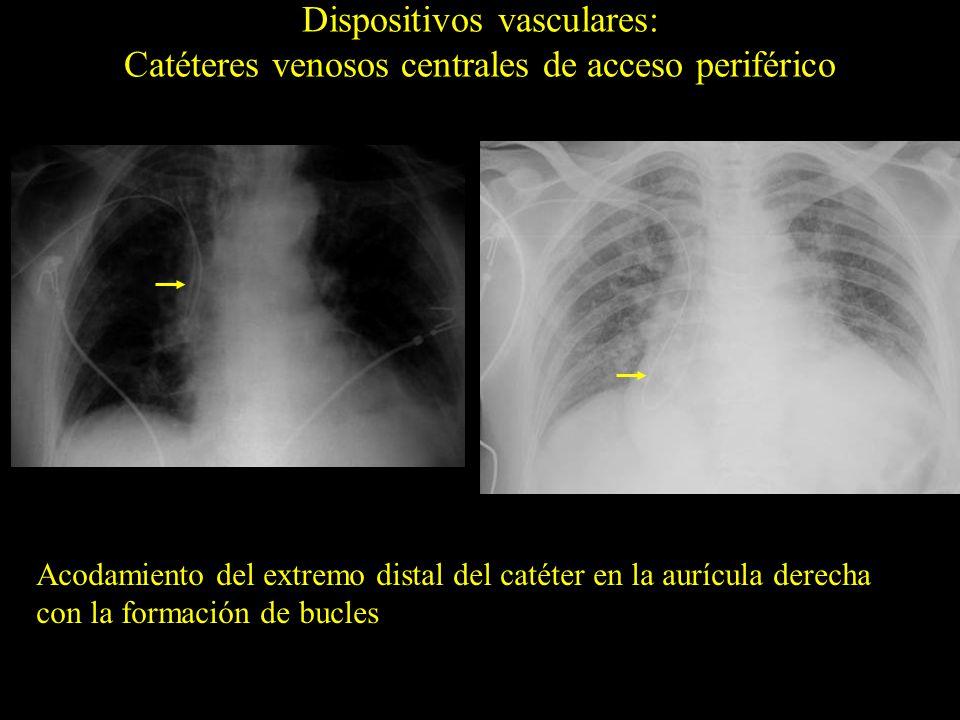 Dispositivos vasculares: Catéteres venosos centrales de acceso periférico Acodamiento del extremo distal del catéter en la aurícula derecha con la for