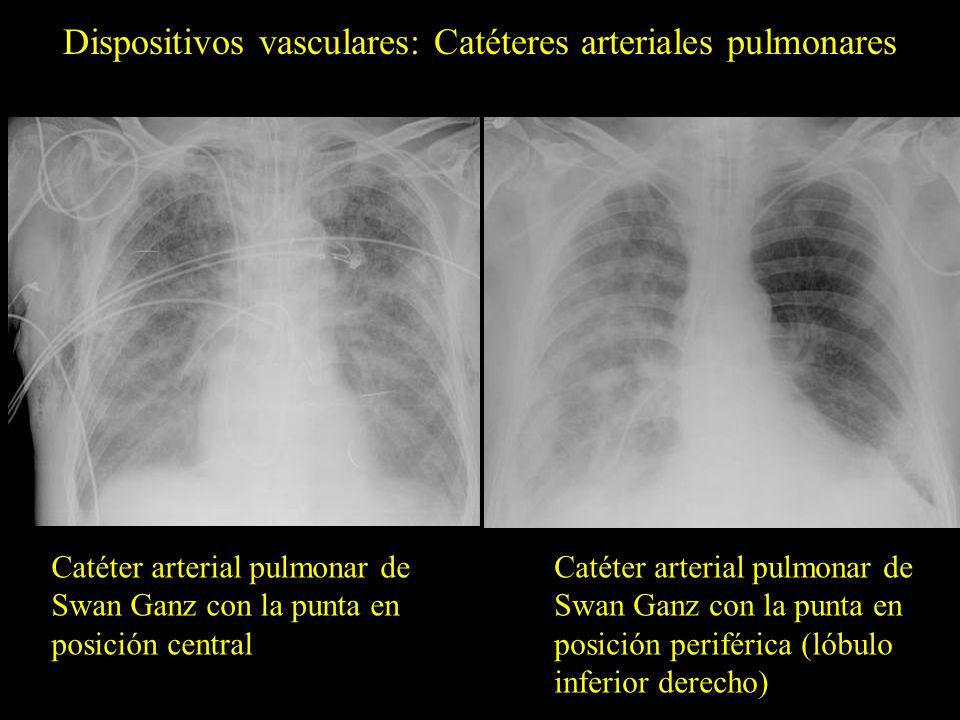 Dispositivos vasculares: Catéteres arteriales pulmonares Catéter arterial pulmonar de Swan Ganz con la punta en posición periférica (lóbulo inferior d