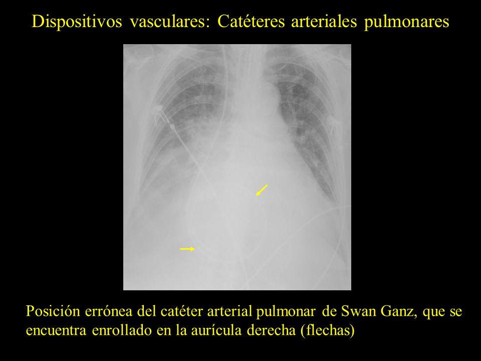 Dispositivos vasculares: Catéteres arteriales pulmonares Posición errónea del catéter arterial pulmonar de Swan Ganz, que se encuentra enrollado en la