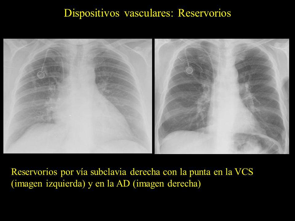Dispositivos vasculares: Reservorios Reservorios por vía subclavia derecha con la punta en la VCS (imagen izquierda) y en la AD (imagen derecha)
