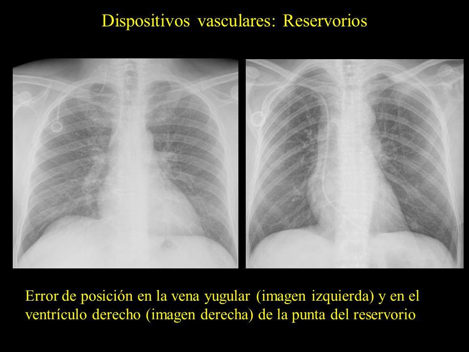 Dispositivos vasculares: Reservorios Error de posición en la vena yugular (imagen izquierda) y en el ventrículo derecho (imagen derecha) de la punta d