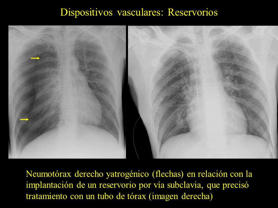 Dispositivos vasculares: Reservorios Neumotórax derecho yatrogénico (flechas) en relación con la implantación de un reservorio por vía subclavia, que