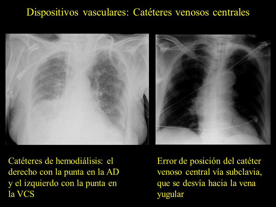 Dispositivos vasculares: Catéteres arteriales pulmonares Posición errónea del catéter arterial pulmonar de Swan Ganz, que se encuentra enrollado en la aurícula derecha (flechas)