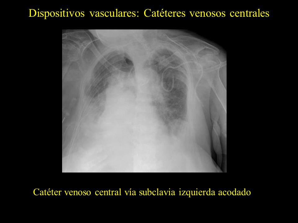 Catéter venoso central vía femoral y reservorio con las puntas en la AD (flechas) Catéter venoso central vía femoral con punta en la VCS Dispositivos vasculares: Catéteres venosos centrales