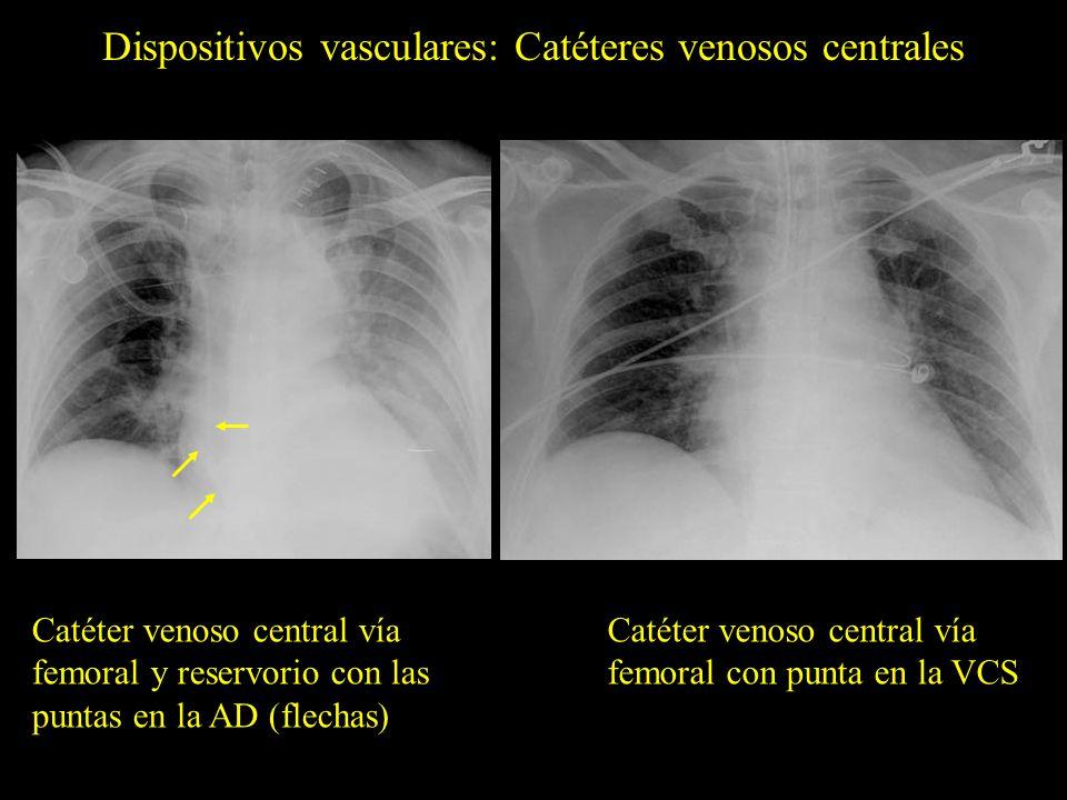 Catéter venoso central vía femoral y reservorio con las puntas en la AD (flechas) Catéter venoso central vía femoral con punta en la VCS Dispositivos