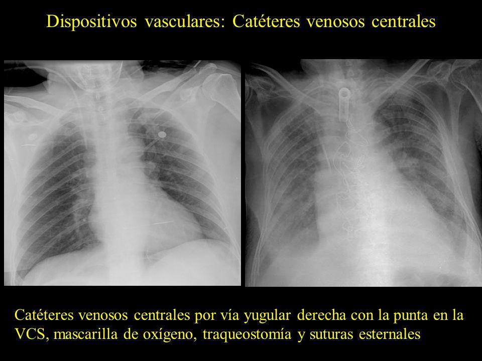 Dispositivos vasculares: Reservorios Neumotórax derecho yatrogénico (flechas) en relación con la implantación de un reservorio por vía subclavia, que precisó tratamiento con un tubo de tórax (imagen derecha)