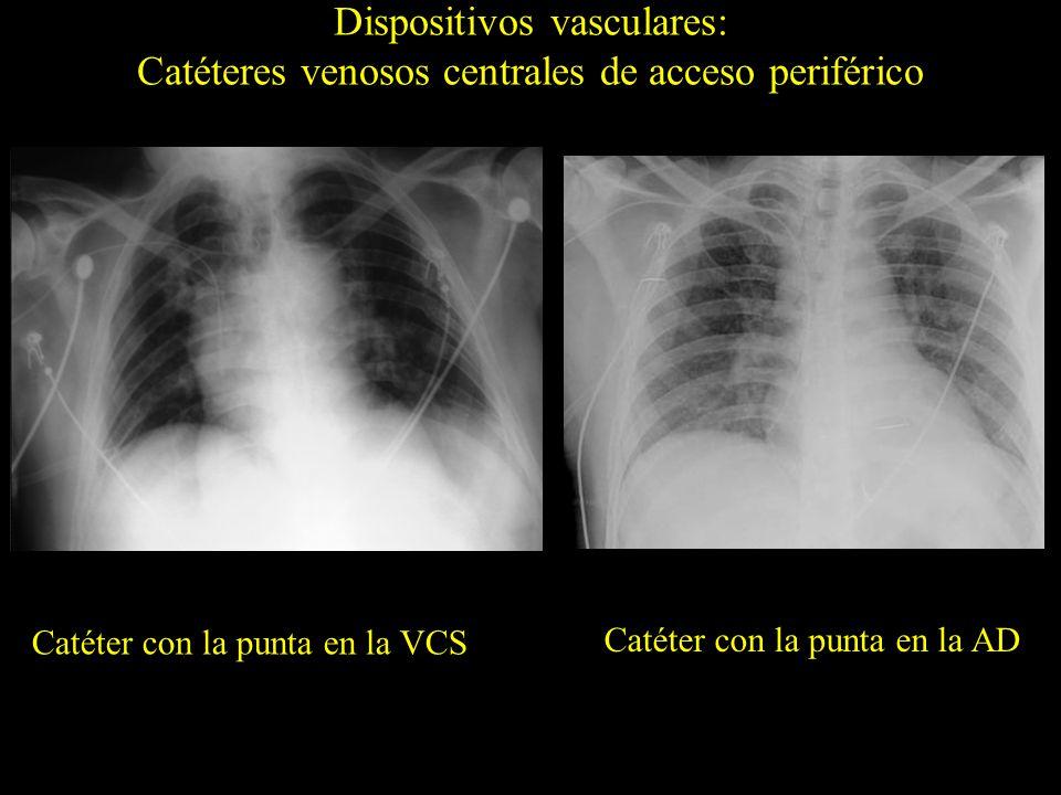 Dispositivos vasculares: Reservorios Hematoma mediastínico yatrogénico (flechas) en relación con la implantación de un reservorio por vía subclavia izquierda